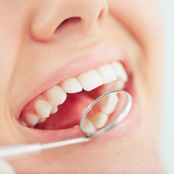 Composite Dental Fillings