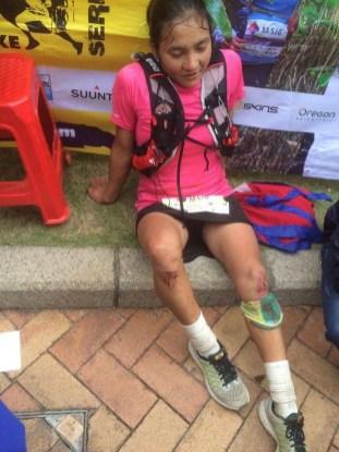 Bishnu Maya Budha reviewing bloody knee from fall between CP2 and CP3