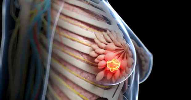 soy breast cancer risk