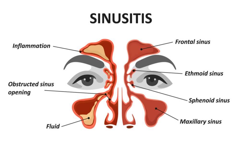 medium resolution of sinu pain diagram