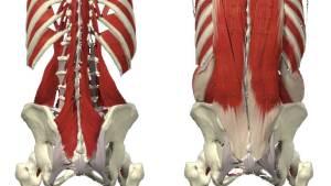 Multifiderna till vänster och nedre delarna av erector spina som ligger ovanför multifiderna till höger