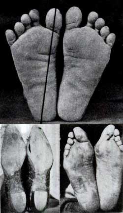 En person som lever barfota överst och en som går i skor under