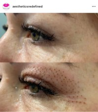 Skin tightening directly after treatment on eyelid. This will continue to tighten for the next 3 months