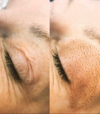 Skin tightening on eye lid