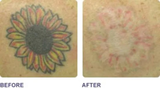 tattoo_beforeafter