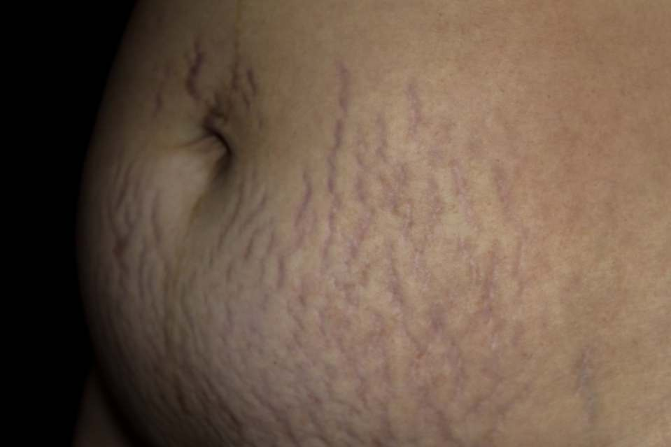 Stretch Marks, Baby Belly