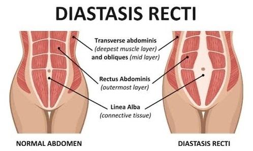 DIASTASIS RECTUS