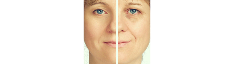 non-surgical-face-lifts - Transformations Med Spa & Fitness