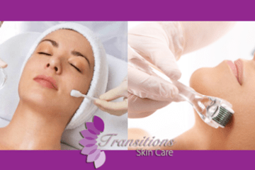 Microneedling and Chemical Peel Specials