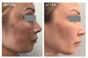 DefenAge Skincare Before and After