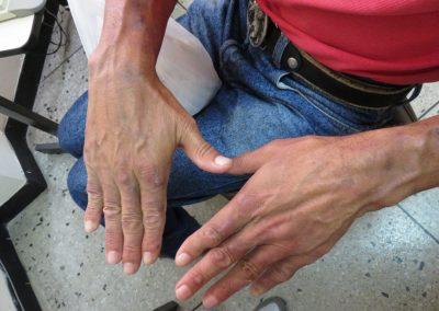 Vigilancia epidemiológica por lepra ha decaído en Barinas
