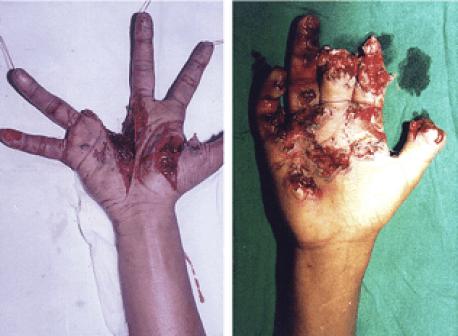 lesiones por petardos