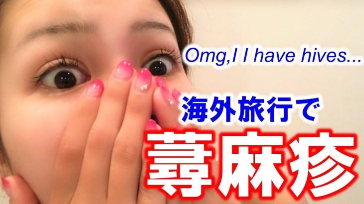 海外旅行で初めて蕁麻疹が!?ほんとびっくり!?もうやだ~ 【ベトナム旅行】#013