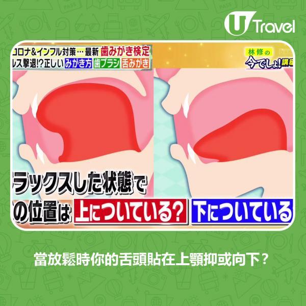 日本牙醫教7大口腔護理貼士正確刷牙方法、牙刷要幾時換一次?   U Travel 旅遊資訊網站