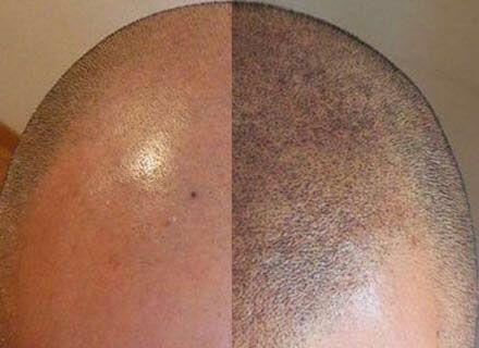 spécial he : micropigmentation de reconstruction capillaire