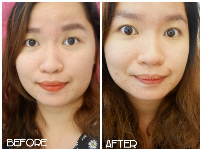 Dermacare: Acne Treatment + Aqua Jet Peel