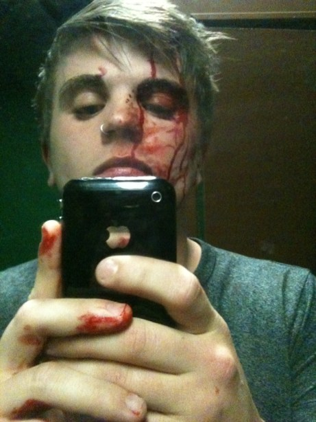 Drummer Of Punchline Jumped By Brokencyde