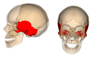 Перелом височной кости: симптомы, классификация, лечение, последствия, особенности у детей. Анатомия и переломы височной кости Продольный перелом пирамиды височной кости