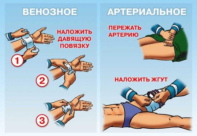 Наложение жгута при кровотечении время. Техника наложения жгута на бедро. Как правильно наложить жгут на бедро