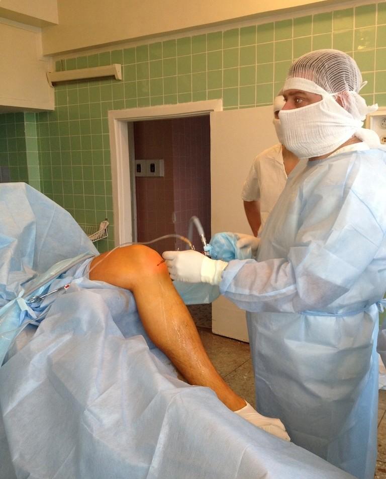 Артроскопия плечевого сустава астана болят суставы после антибиотиков