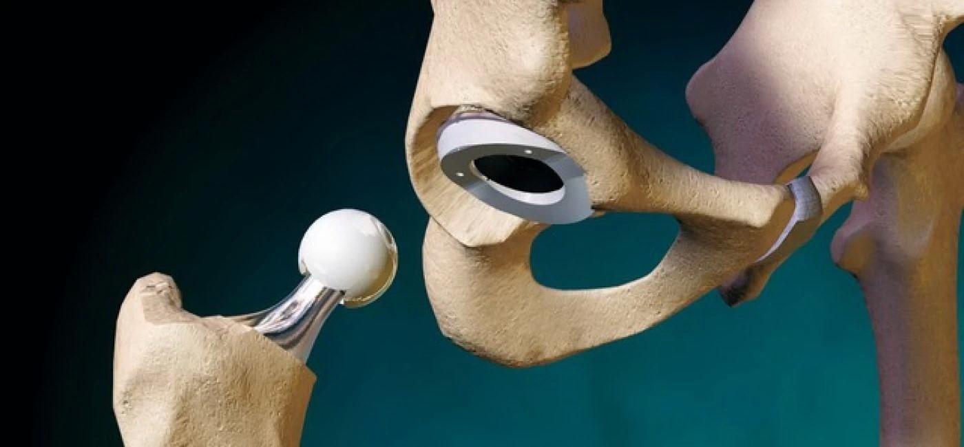 Все о эндопротезировании суставов