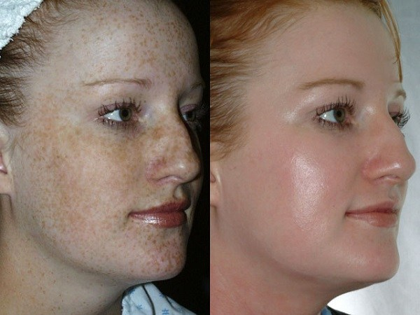 Chemical-Peel-Before-and-After-1