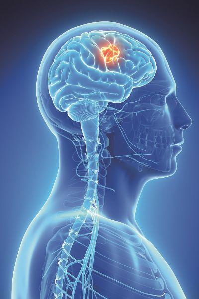 Hirntumore therapieren und diagnostizieren