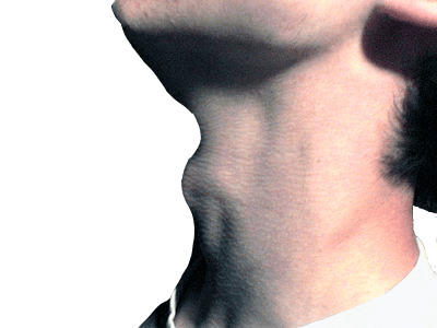 Hypothyroidism in men