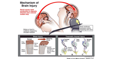 mechanism of brain injury