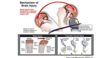 mechanism of brain injury