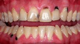 black spots on gums