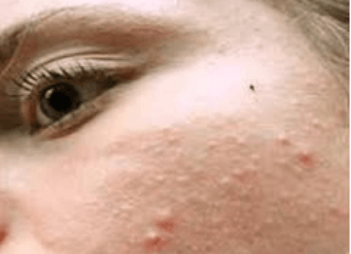Hard bumps on face, not itchy, tiny, like mosquito bites ...