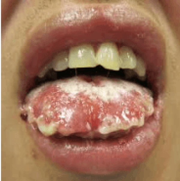 Sores on underside bottom of tongue opinion you