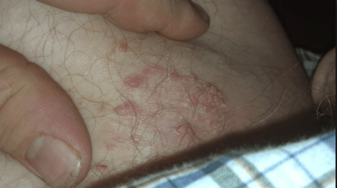 Warts on the inner thigh