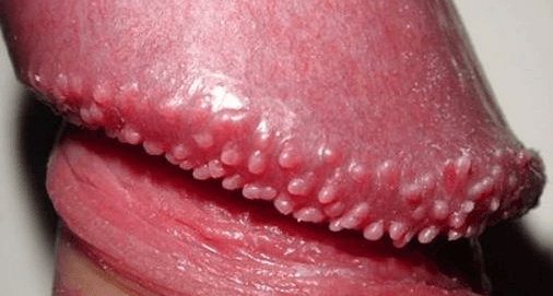 Spots On Underside Of Penis