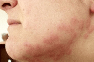 Pictures Of Facial Bug Bites