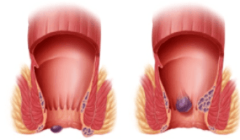 what to do if a hemorrhoid ruptures
