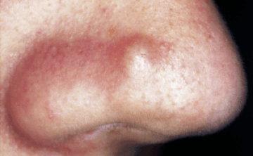 sebaceous cyst on face how to get rid of fast