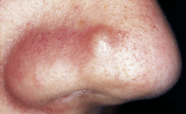 Cystic Pimple On Nose Acne Scars Meaning Hurts Won T Go Away