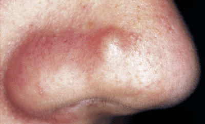 how to get rid of a cystic pimple at home