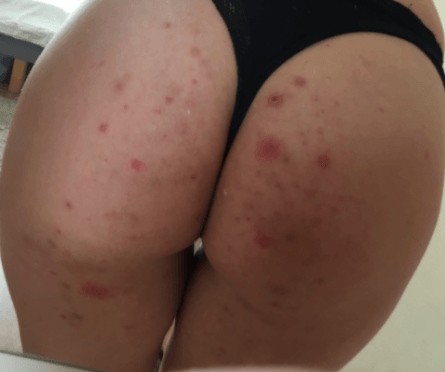 Pimple On Buttocks Causes Std Pictures Huge Painful Itchy