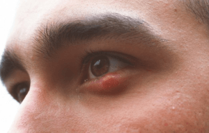 how to get rid of a swollen eyelid from stye