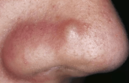 how to make pimples go away overnight