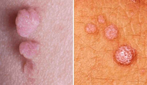 skin tags on the penile shaft
