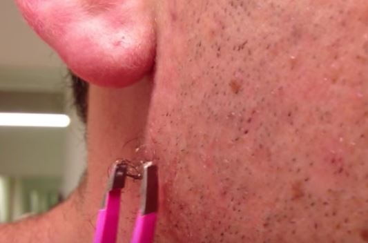 Ingrown Facial Hair Deep Infected Causes Removal Get