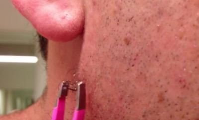 Ingrown facial hair removal