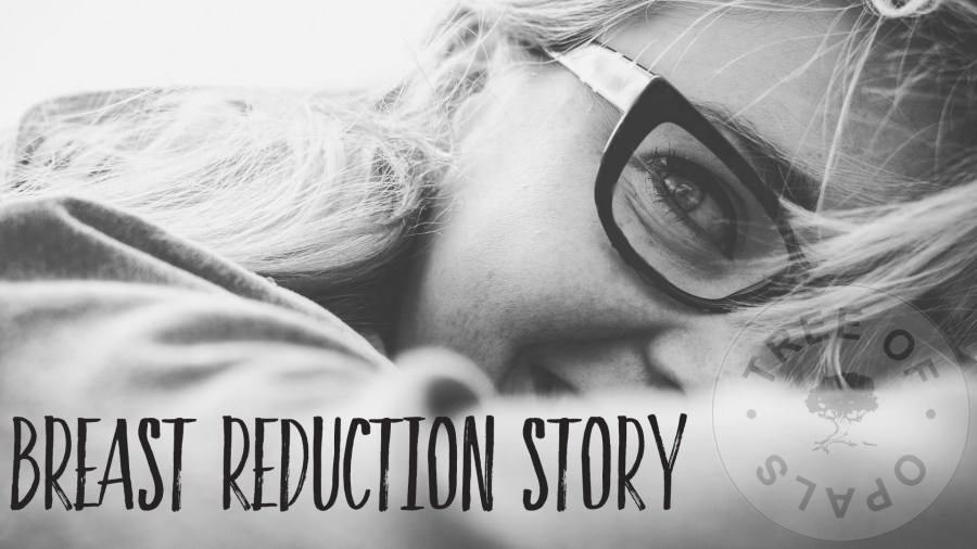 breast reduction story