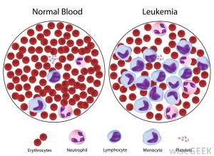 diagram-of-effects-of-leukemia-on-blood