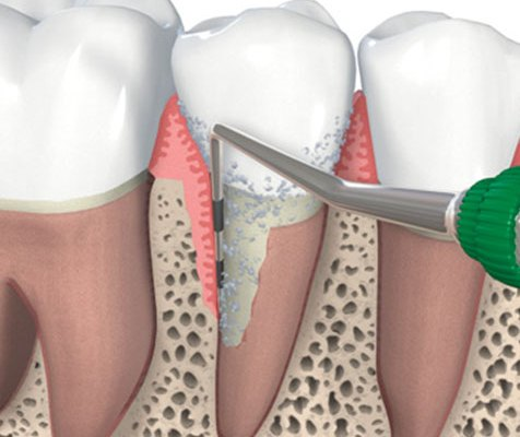 Periodontal Care