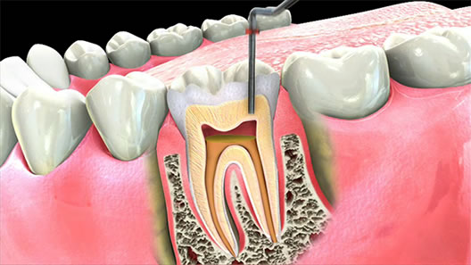 Root Canals By The Experts In South Boston Tremont Dental